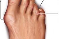 [발과 건강] Hammer Toe (망치족지)