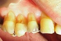 [조셉 한의 건강한 치아]●왜 치아가 시린 것일까?