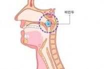 김우빈 투병 비인두암 증상과 예방법은