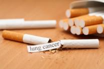 """""""흡연 줄자 암사망도 줄어…이제 문제는 '비만'"""""""